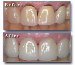 Zirconium Crowns | Elit Dental Clinic | Kusadasi Dentist